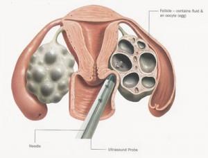 ægudtagning of fertilitetsbehandling